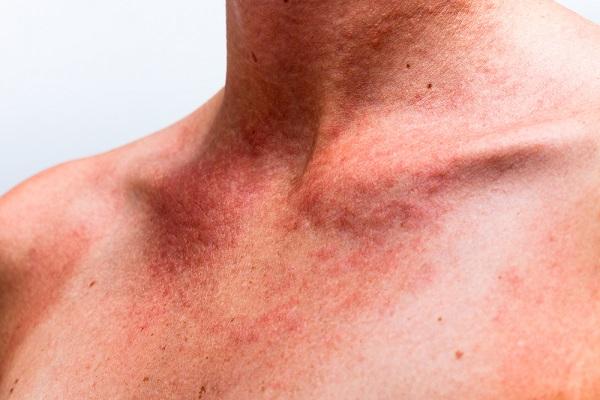 Аллергия, которую можно попутать с укусами постельных клопов